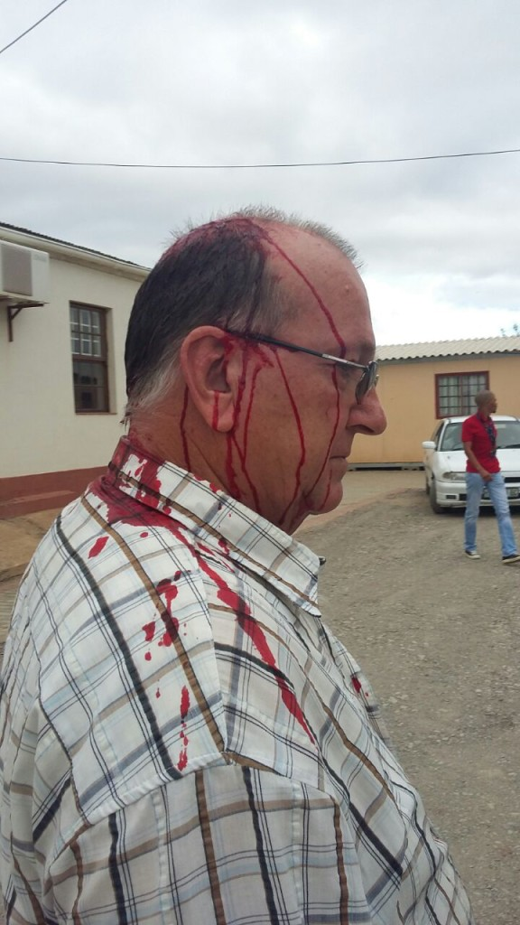 The mayor of the DA-controlled Baviaans Municipality, was attacked in his office in Willowmore by an assailant wielding a knobkierie this morning.